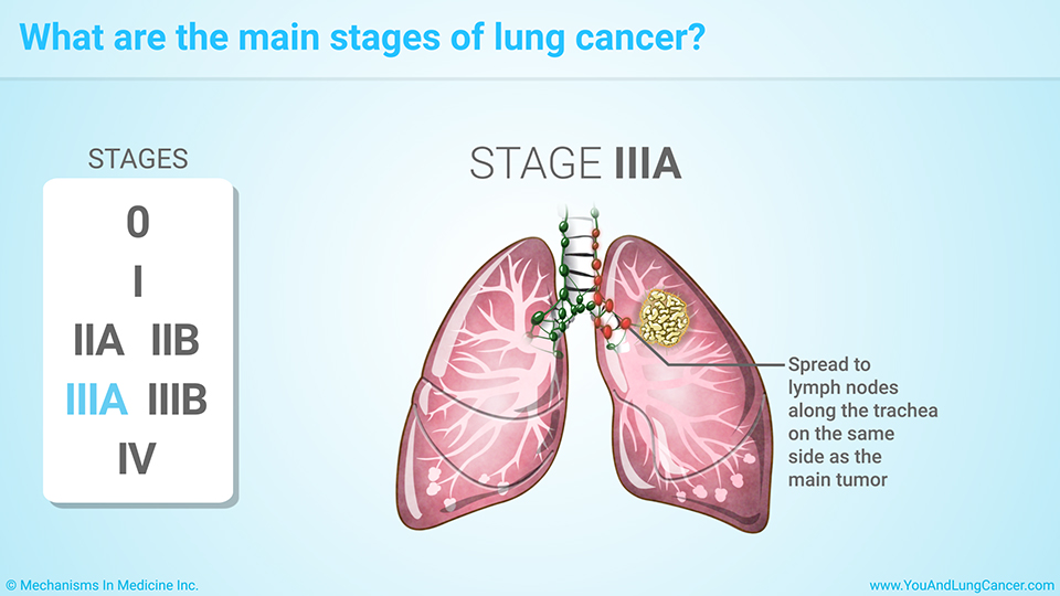 Stage 4 Lung Cancer >> Staging Of Lung Cancer