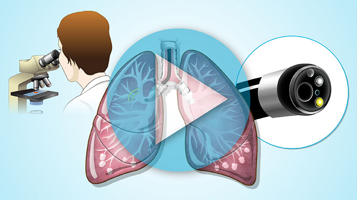 Animation - Diagnosis and Screening of Lung Cancer