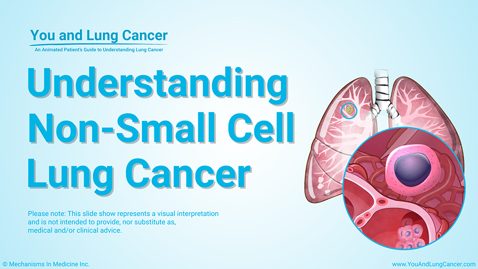Slide Show - Understanding Non-Small Cell Lung Cancer