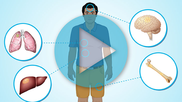 Animation - Understanding Small Cell Lung Cancer