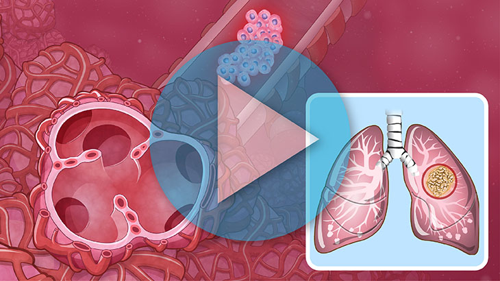 Animation - Understanding Non-Small Cell Lung Cancer