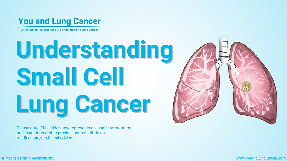 Slide Show - Understanding Small Cell Lung Cancer