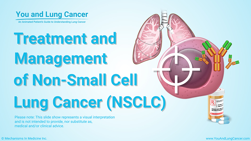 Slide Show - Treatment and Management of  NSCLC