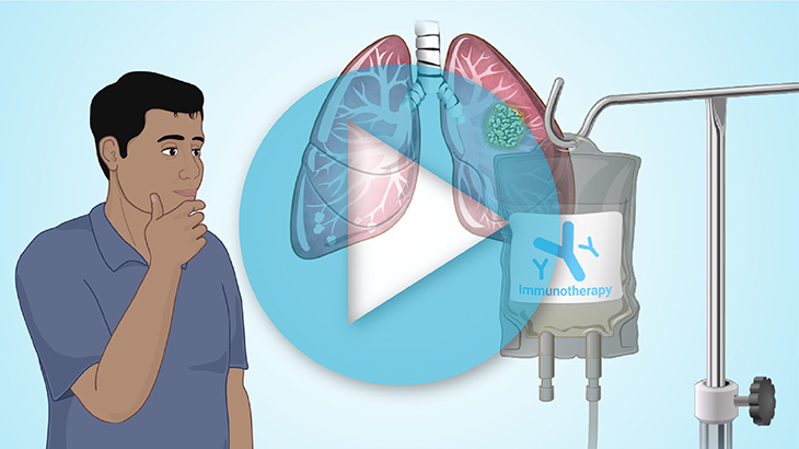Animation - Immunotherapy Treatments for NSCLC