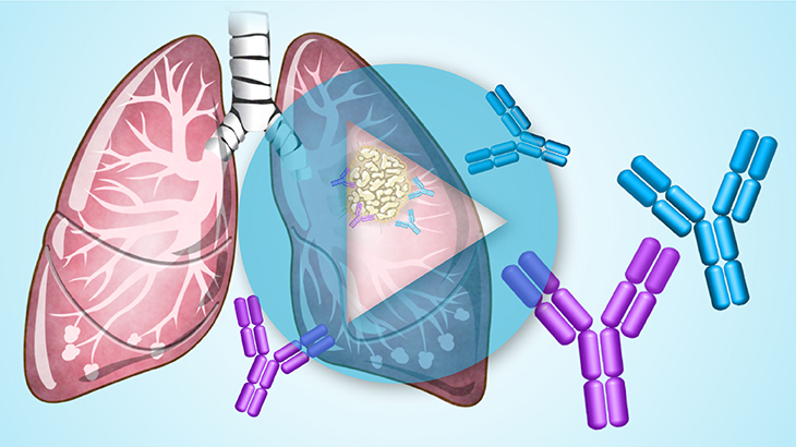 Animation - Immunotherapy Treatments for SCLC