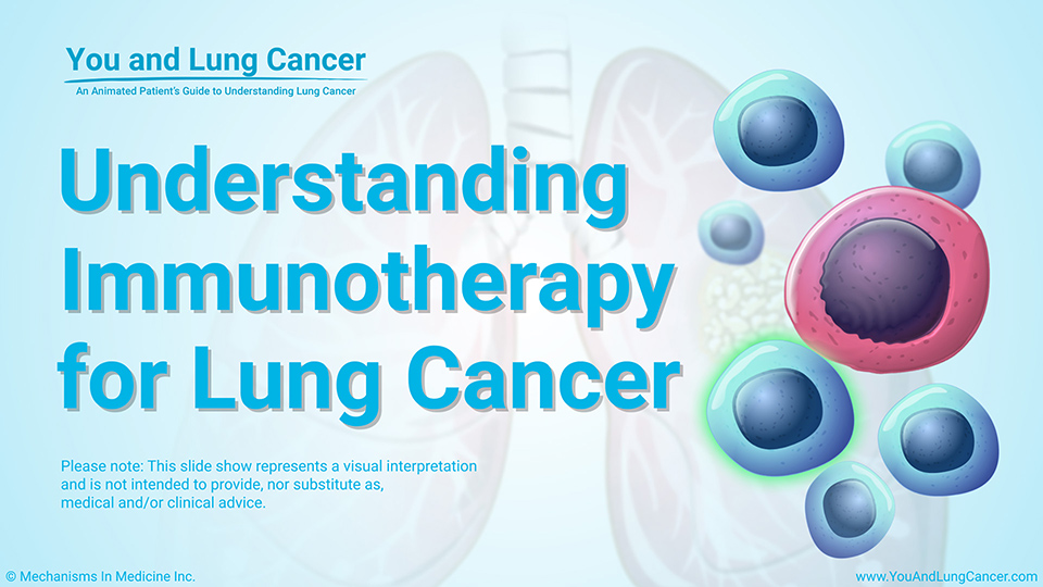 Slide Show - Understanding Immunotherapy for Lung Cancer