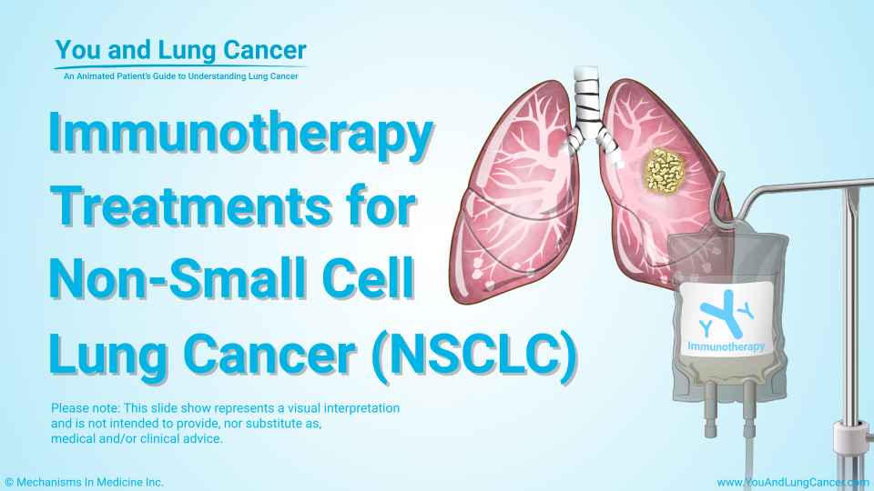 Slide Show - Immunotherapy Treatments for NSCLC