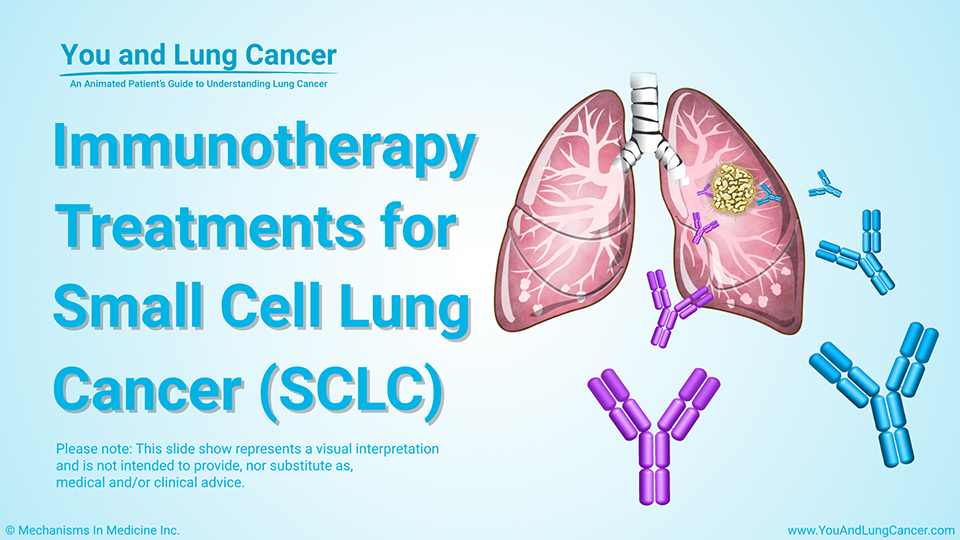 Slide Show - Immunotherapy Treatments for SCLC