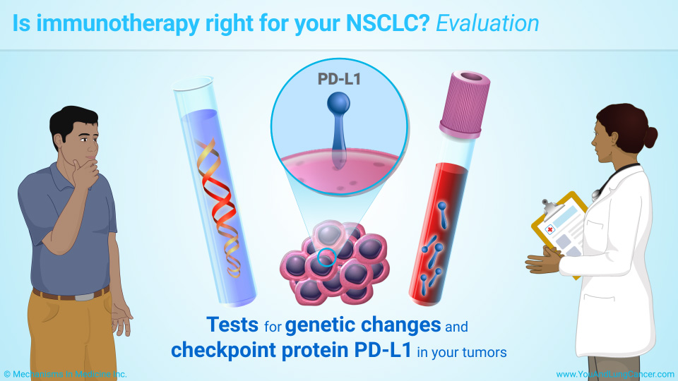 Is immunotherapy right for your NSCLC? Evaluation
