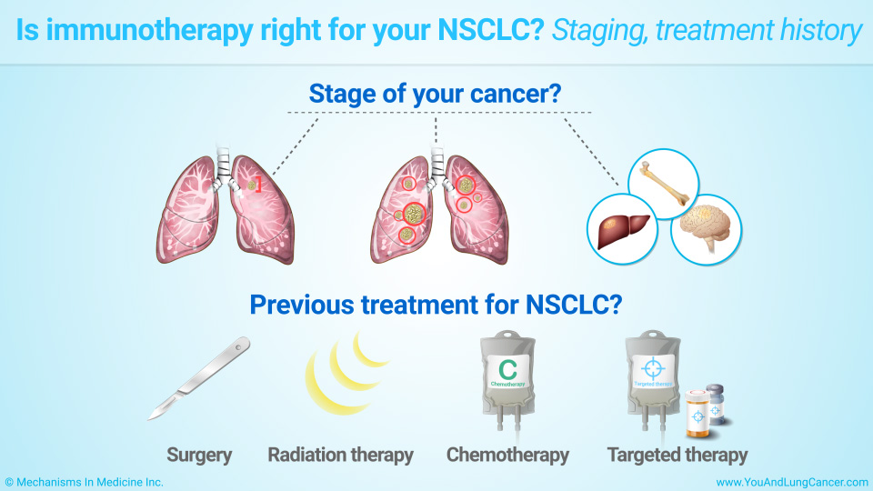 Is immunotherapy right for your NSCLC? Staging, treatment history