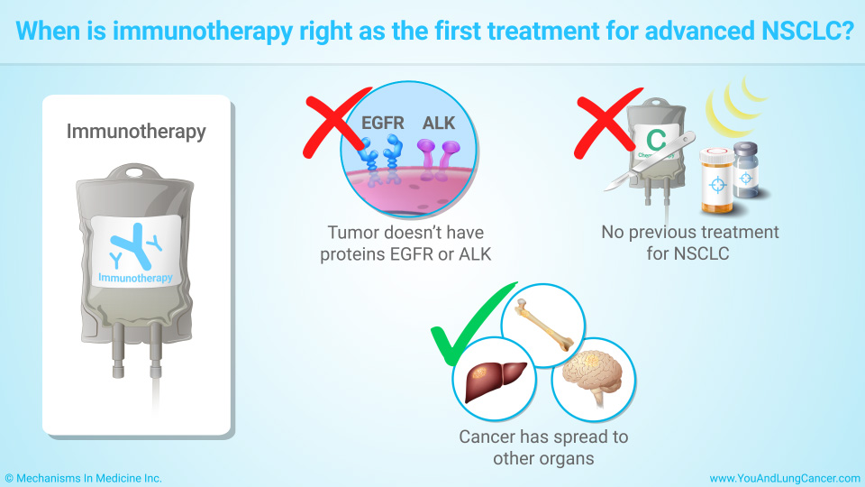 When is immunotherapy right as the first treatment for advanced NSCLC?