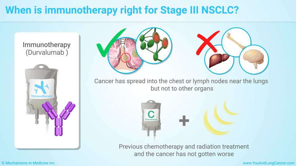 When is immunotherapy right for Stage III NSCLC?