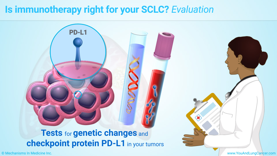 Is immunotherapy right for your SCLC? Evaluation