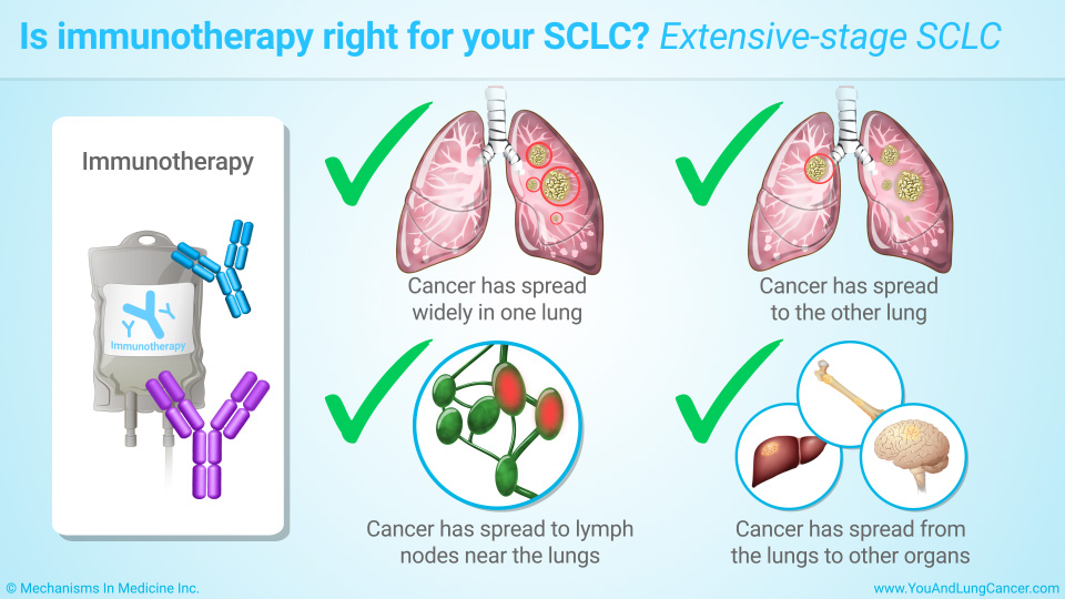 Is immunotherapy right for your SCLC? Extensive-stage SCLC
