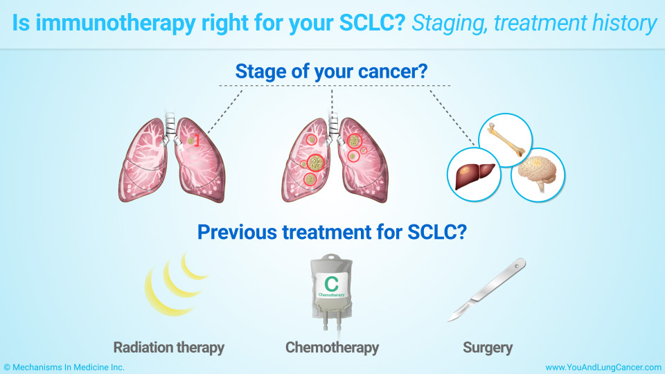 Is immunotherapy right for your SCLC? Staging, treatment history